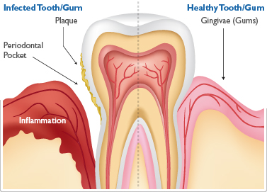 periodontal-gum-disease